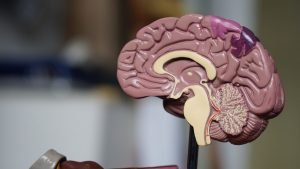 medical model of a brain